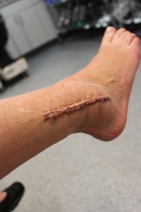 broken ankle